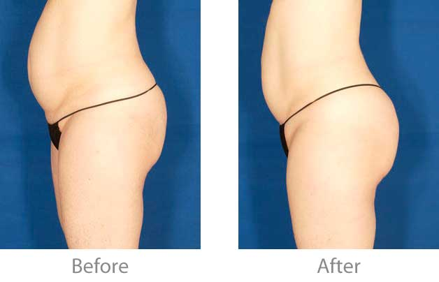 velashape3-before-after