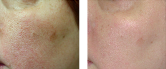Skin Discoloration Treatment
