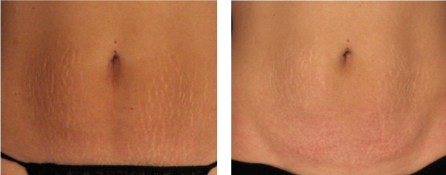 before_after_striae